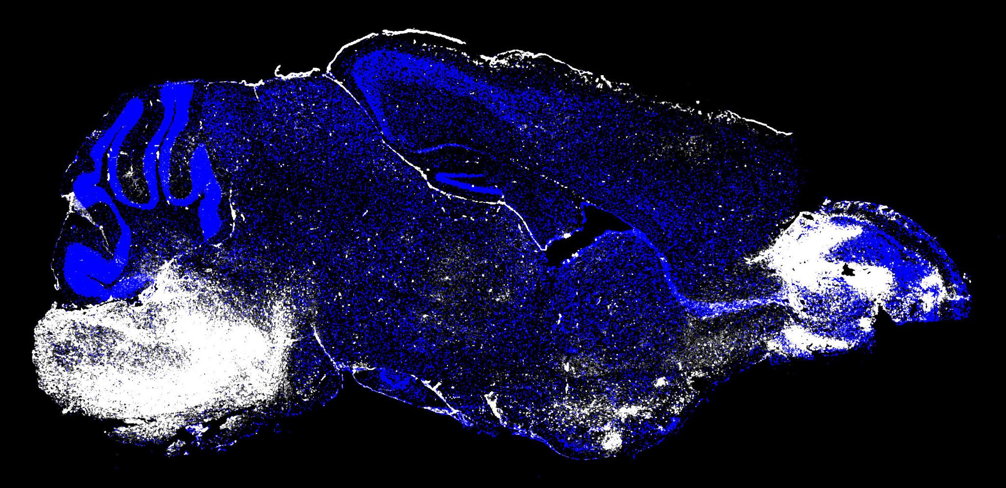 Precancerous pancreatic tissue in mouse