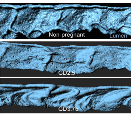 Dynamic folding of the mouse uterine lumen (blue) at different days of mouse pregnancy.