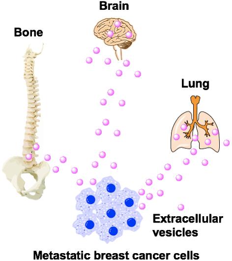 Metatastic breast cancer cells