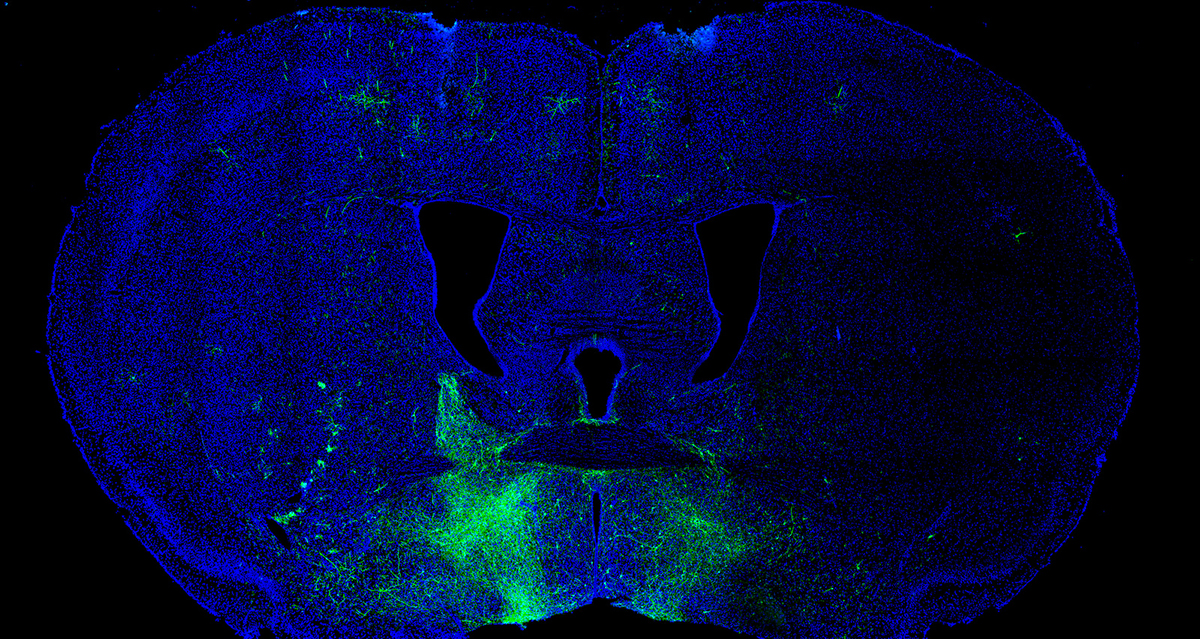 Image of Neurons in reward seeking and avoidance pathways
